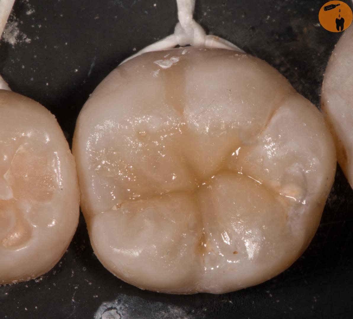Zahn offen – Ein seit drei Monaten offener Zahn mit Schmerzen